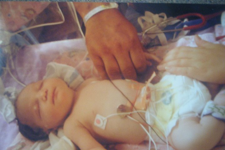 Preemie babies and the risks